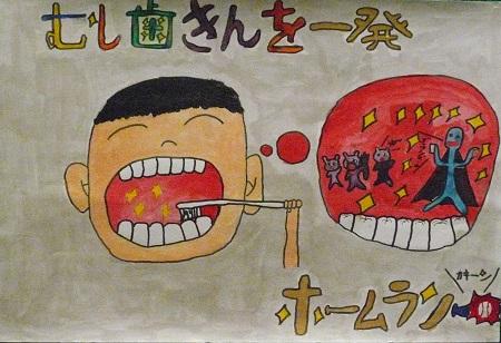 平成 25年度 歯を守る図画・ポス...